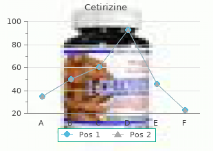 buy 5 mg cetirizine mastercard