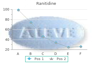 quality 150 mg ranitidine